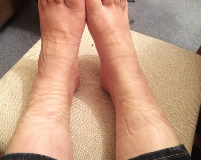 swollen feet and ankles during pregnancy